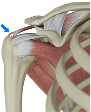 Calcific Cuff Tendinopathy