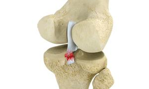 Posterior Cruciate Ligament Injuries