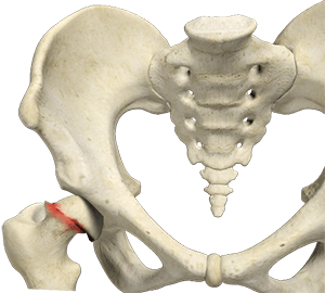 slipped capital femoral epithesis